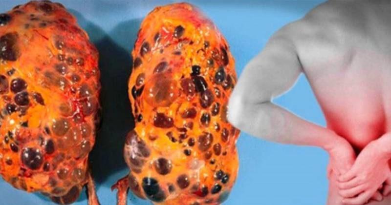 abitudini che danneggiano i reni