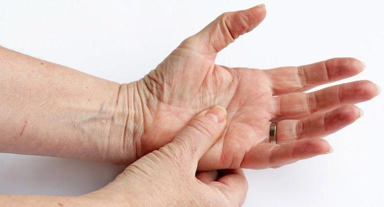 preparati medicinali per artrite reumatoide