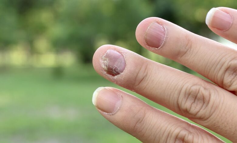 Funghi delle unghie