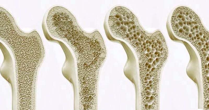 cura delle ossa piante