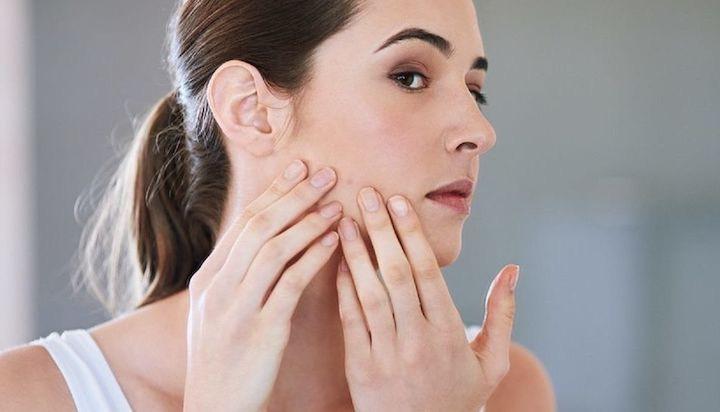 azione contro l'acne