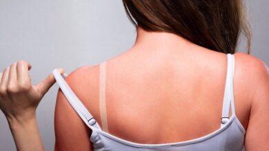 Photo of Scottature solari, i rimedi naturali più efficaci per alleviare il dolore