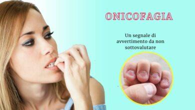 Photo of Onicofagia, mangiare le unghie in modo compulsivo è un segnale di avvertimento da non sottovalutare