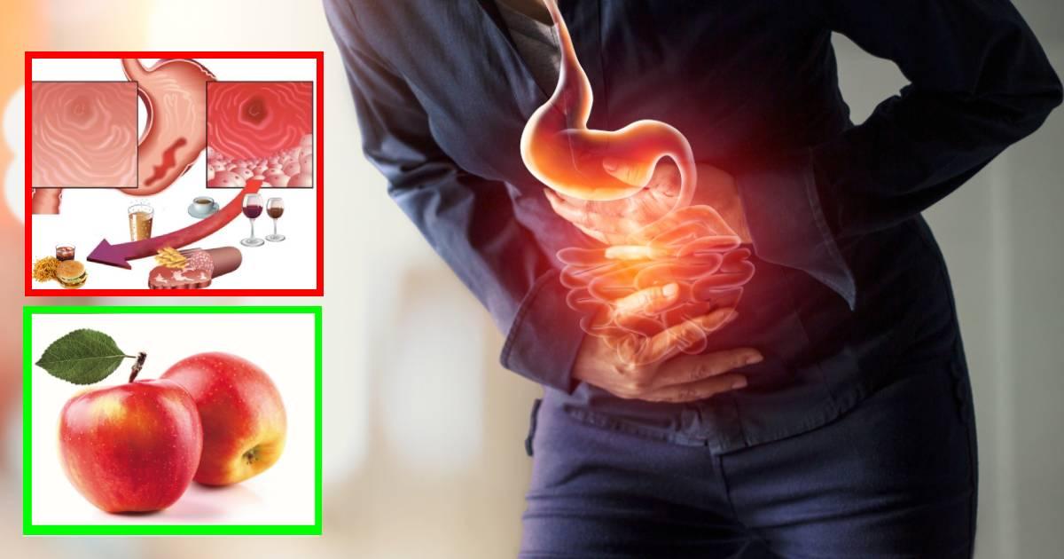 Come curare la gastrite