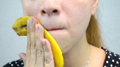 Photo of Buccia della banana, un prezioso alleato naturale utile per eliminare rughe, acne, verruche e psoriasi