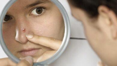 Photo of Come eliminare i brufoli dal viso con rimedi naturale efficaci che assicurano risultati immediati