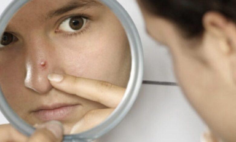 Come eliminare i brufoli dal viso con rimedi naturale