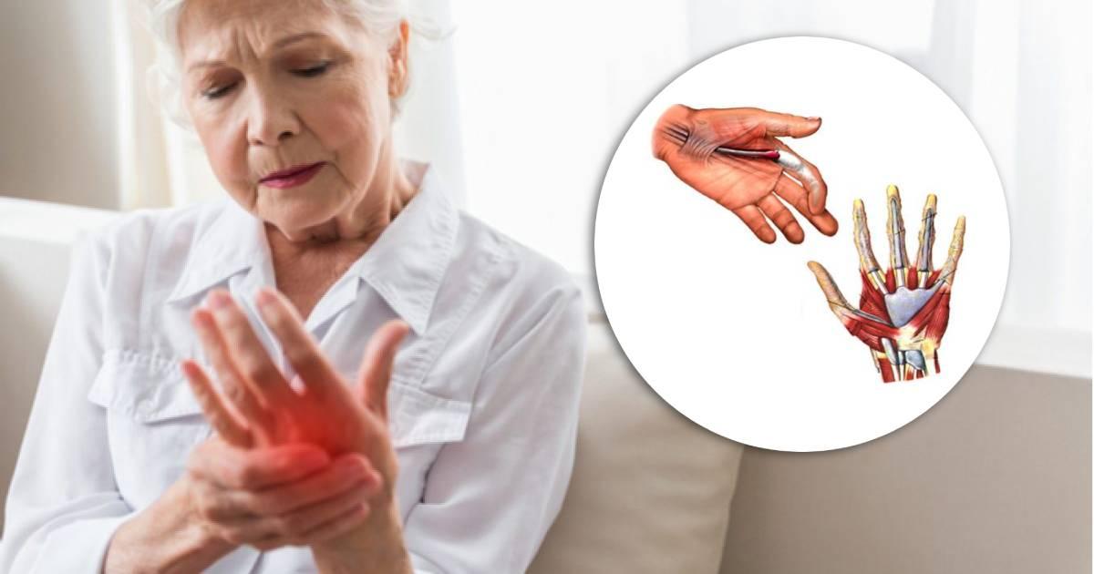Dolore a mani e polsi_ le cause del disturbo che colpisce soprattutto le donne