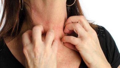 Photo of Funghi della pelle: i rimedi naturali più semplici ed efficaci per eliminarli definitivamente