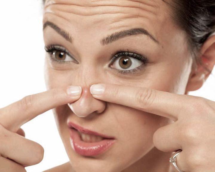 Per eliminare i brufoli dal viso in modo risolutivo