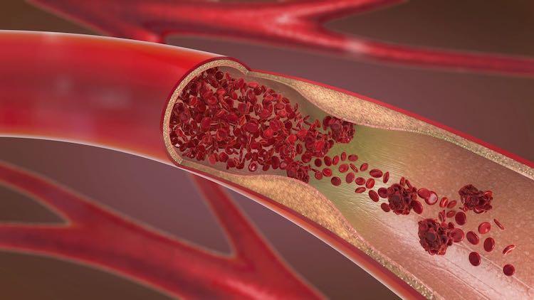 Trombosi principali cause