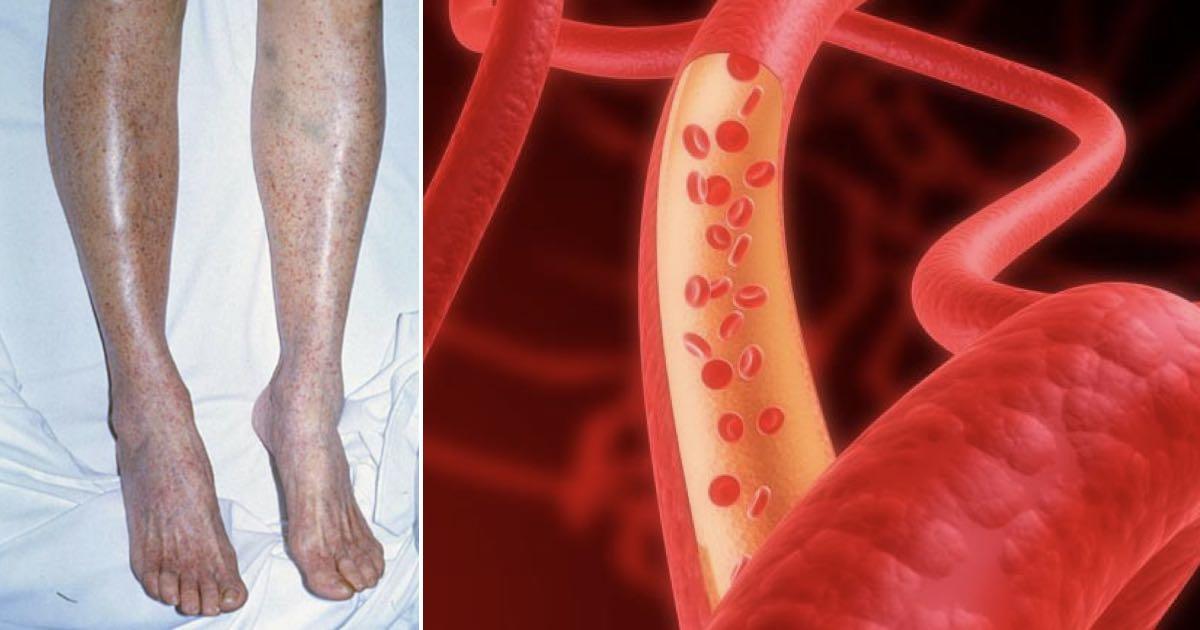 Piastrinopenia autoimmune cause sintomi