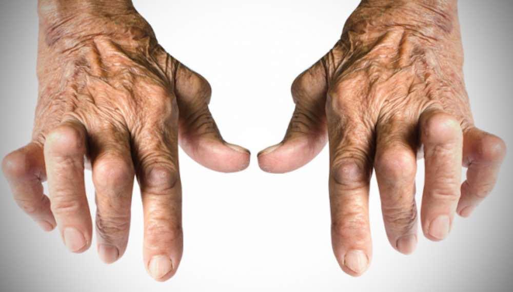 Chi soffre di artrite artrosi mangiare questi 5 alimenti