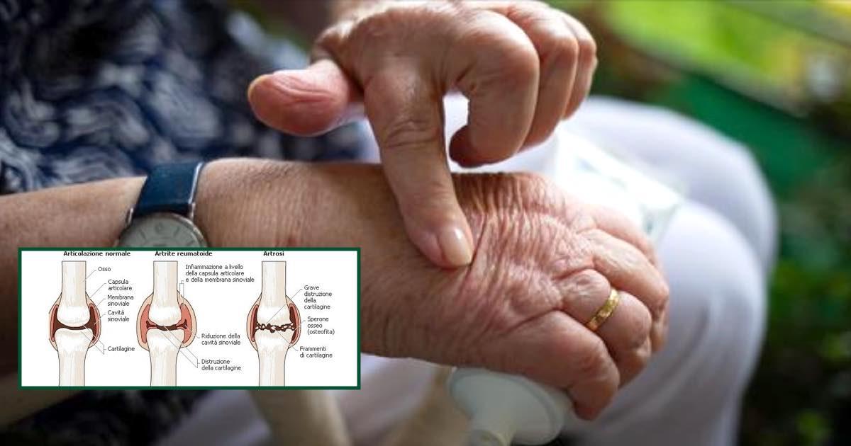 Chi soffre di artrite artrosi